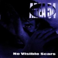 AREA 54 - No Visible Scars